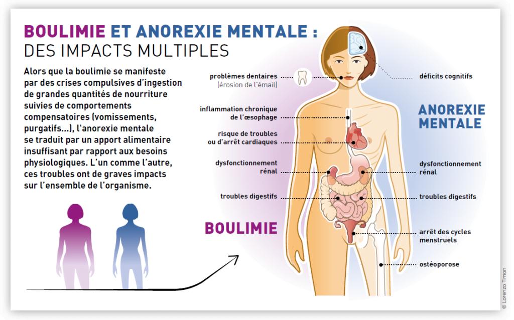 Infographie désordres alimentaires boulimie anorexie TCA
